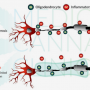 Cannabis and Multiple Sclerosis— ew directions cannabis research may help to achieve the goal